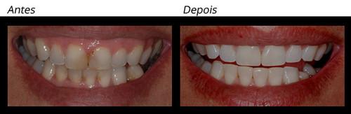 Restaurações - WHITE Dental Team