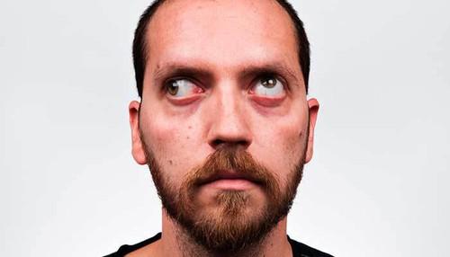 Homem com olhos tortos