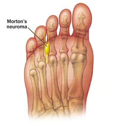Fungo de pregos de sinais de pernas e tratamento