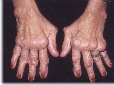 artroses nas maos tratamento natural