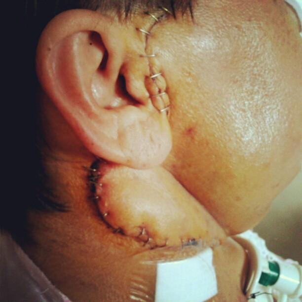 9 dez 12 - 5 dias depois da remoção do tumor