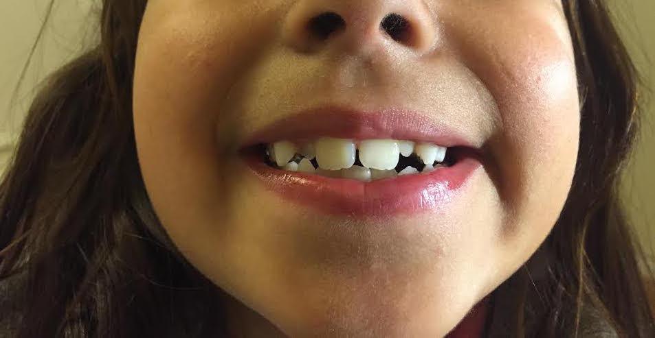 mada dentes 1:1.jpg